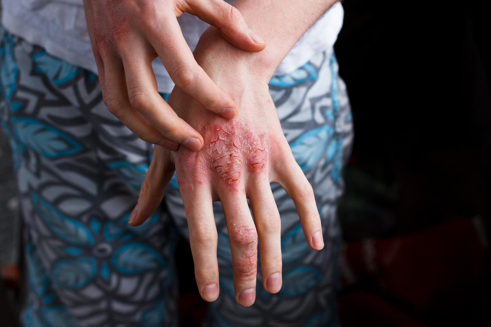 Psoriasis Update for the Seekers for Knowledge