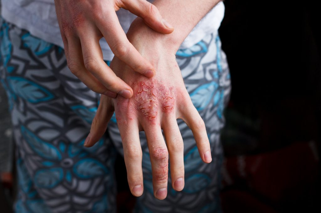 Relief for Patients with Atopic Dermatitis